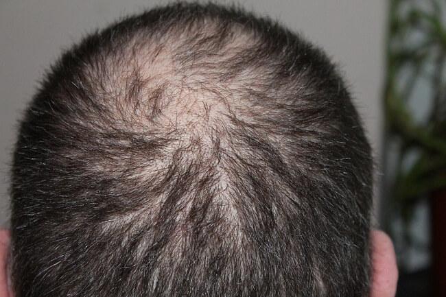 cara mengobati rambut rontok secara alami dengan bawang putih